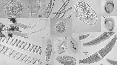 Index moreover 2188456193 also Bacterial Cell additionally File Metazoan Phyloge ic Tree also Pond Water Organisms Microscopic. on protists