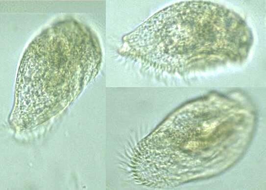 protist images condylostoma vorticella
