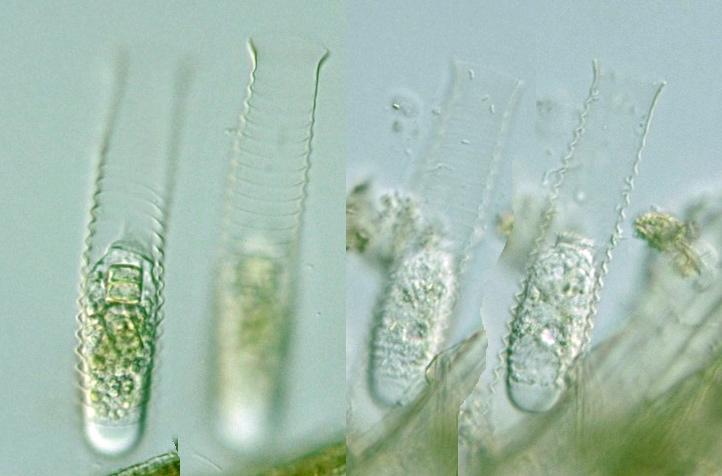 Ciliophora  Vasicola
