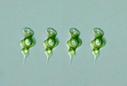 a peptikus fekély súlycsökkenést okoz-e egészséges arány a zsírvesztéshez