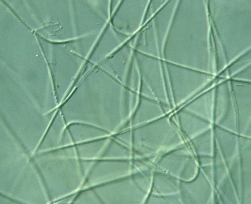 Prokaryote: Nostocales: Lyngbya