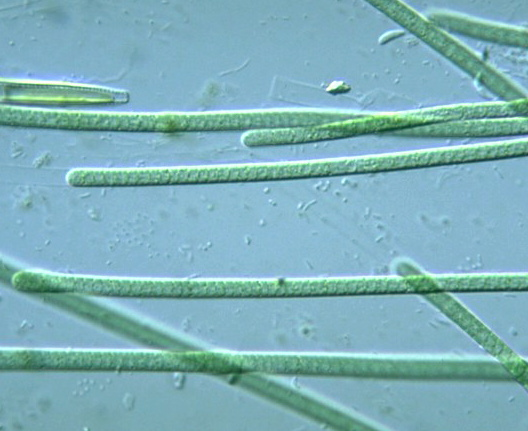 Prokaryote: Cyanobacteria: Lyngbya