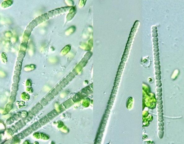 Prokaryote: Cyanobacteria: Lyngbya putealis