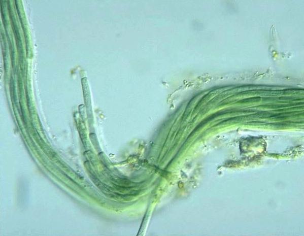 Prokaryote Nostocales Microcoleus