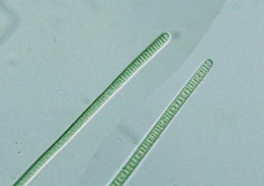 Prokaryote: Cyanobacteria: Oscillatoria subbrevis