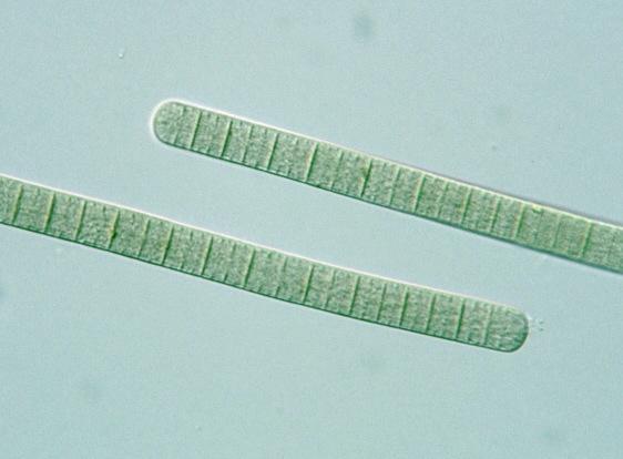 Prokaryote: Cyanobacteria: Oscillatoria
