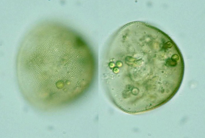 Vulgaris I likewise Mukherjee R together with Enteromyxa Paludosa together with Nauplius Lo furthermore Birky. on marsh nuclei