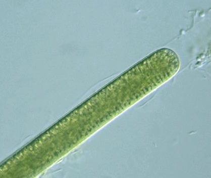 prokaryote cyanobacteria lyngbya confervoides