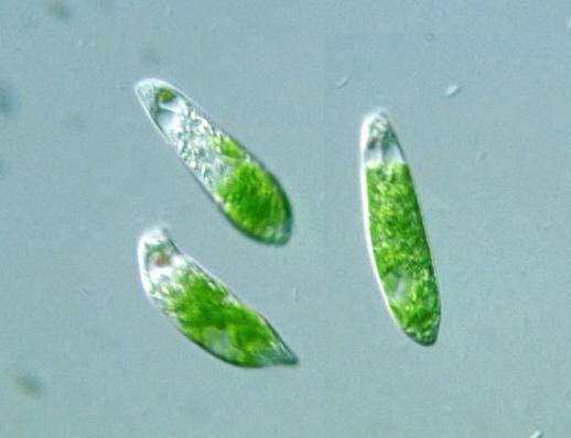 Protist Images: Euglena anabaena