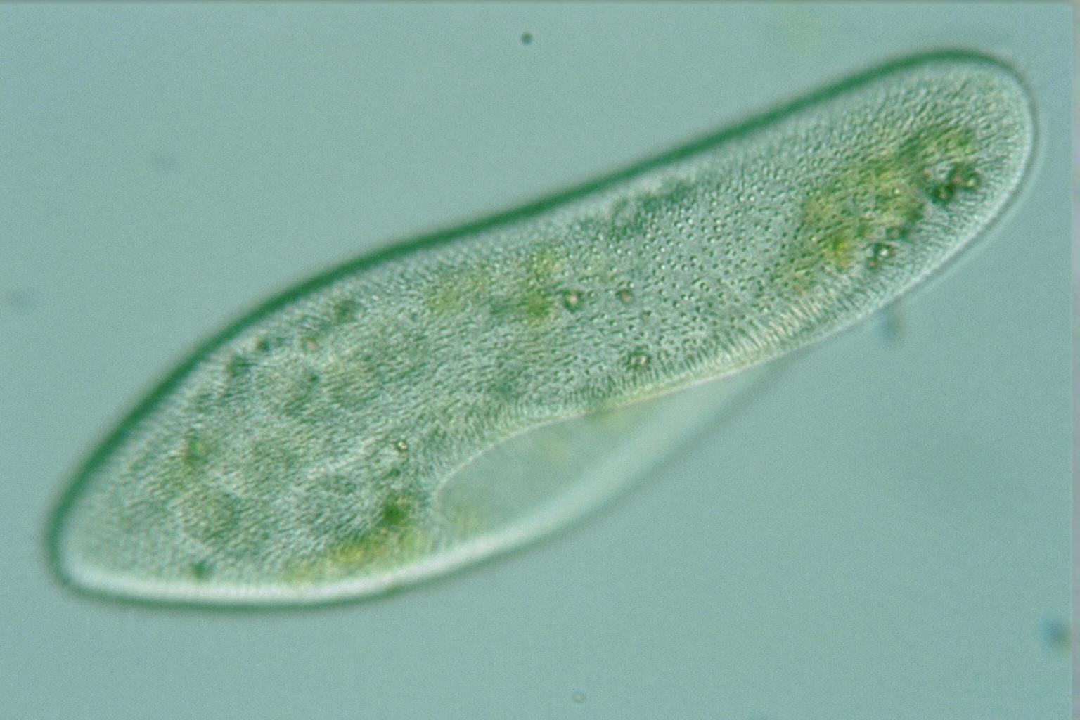 Paramecium Caudatum Under A Microscope International Journal ...