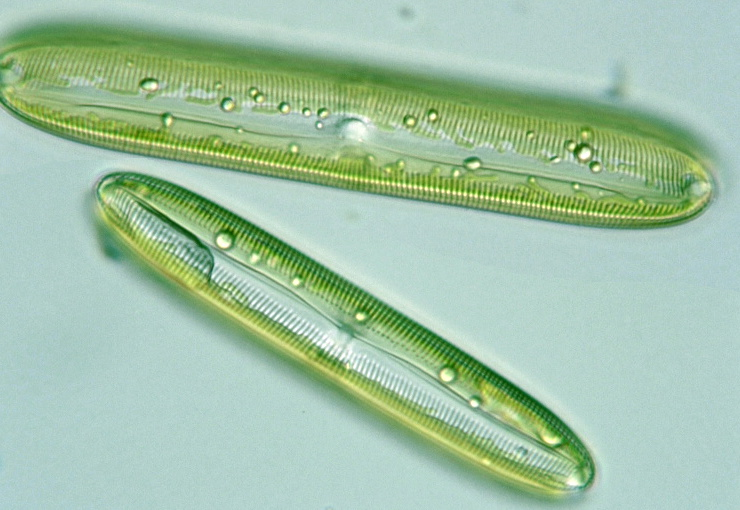 Diatoms Microscope Protist Images: Pinnul...