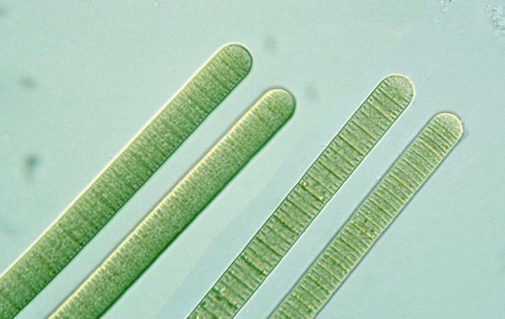 Prokaryote: Cyanobacteria: Oscillatoria limosa