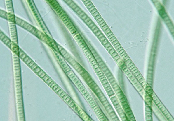 Prokaryote: Cyanobacteria: Oscillatoria simplicissima