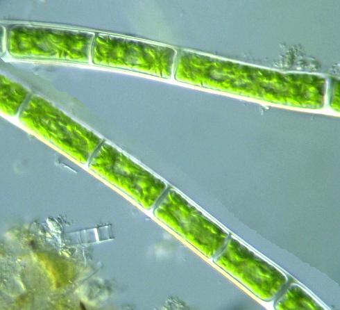 Protist Images: Filamentous algae