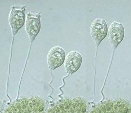 Image result for vorticella