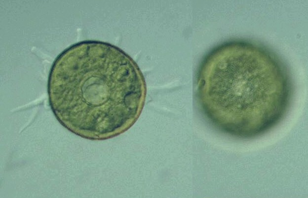 protist images arcella vulgaris